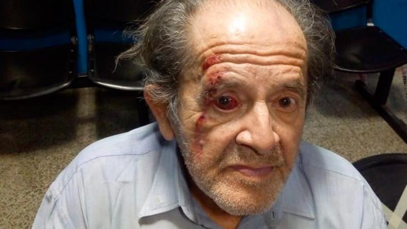 Un jubilado quedó en terapia intensiva tras ser golpeado por un guardia de un supermercado